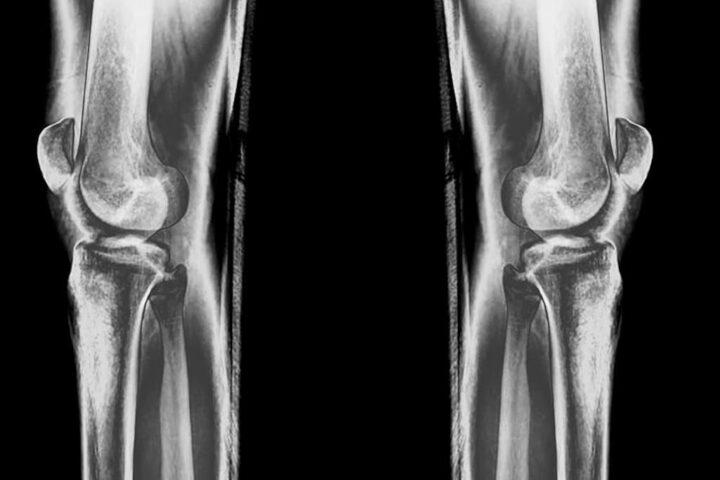 Magnetoterapia nel trattamento dell'artrosi