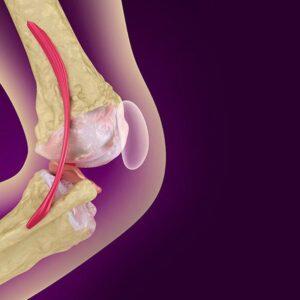 Magnetoterapia nel trattamento dell'osteoporosi
